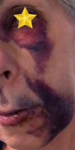 orangic skin care Arnica bruise salve